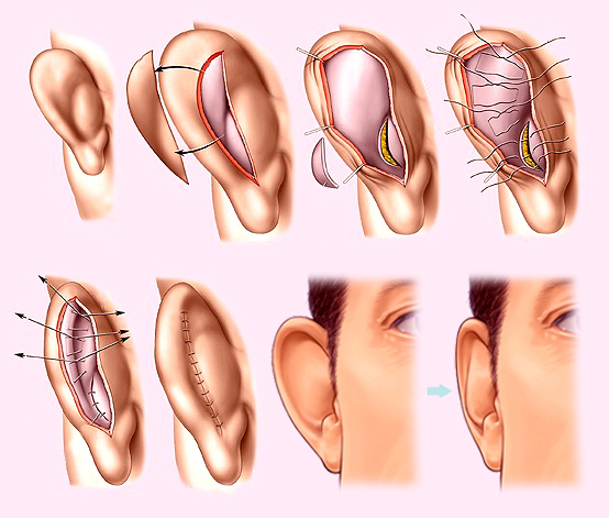 пластика ушных раковин в Самарканде
