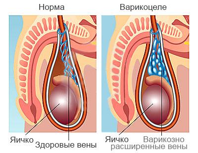 Операции при варикоцелев Самарканде